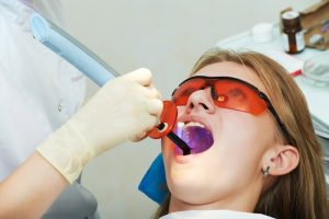 Mercury-Free Fillings