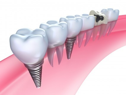 Dental Implants FAQs