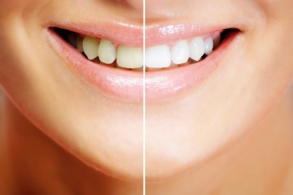 5 Reasons You Should Consider Teeth Whitening