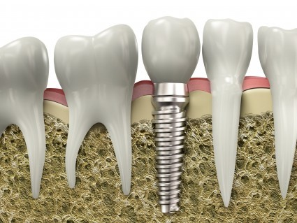 5 Reason You Should Consider Dental Implants