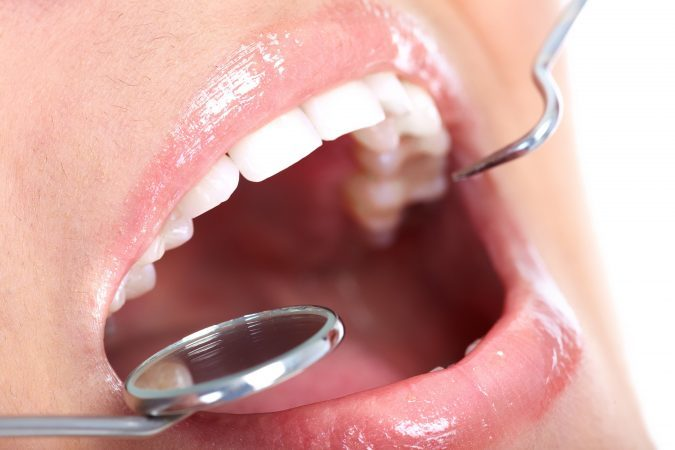 How to Make Your Teeth Whitening Treatment Last Longer