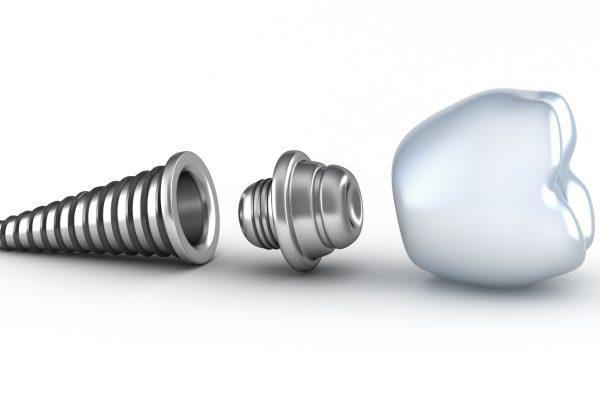 lifespan of dental implants