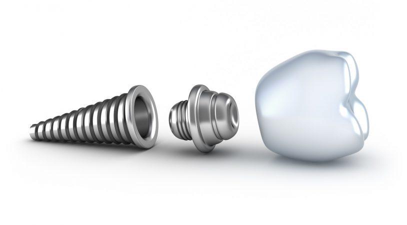 The Lifespan of Dental Implants