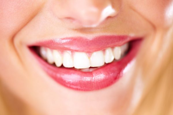 different types of staining tooth whitening can help