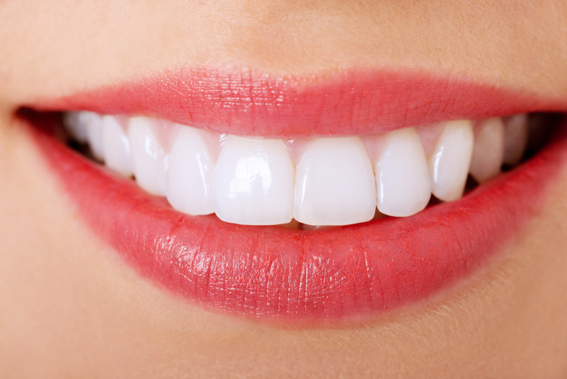 Good to Know Facts About Invisalign