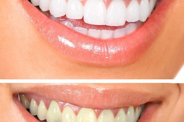 teeth whitening Alpharetta