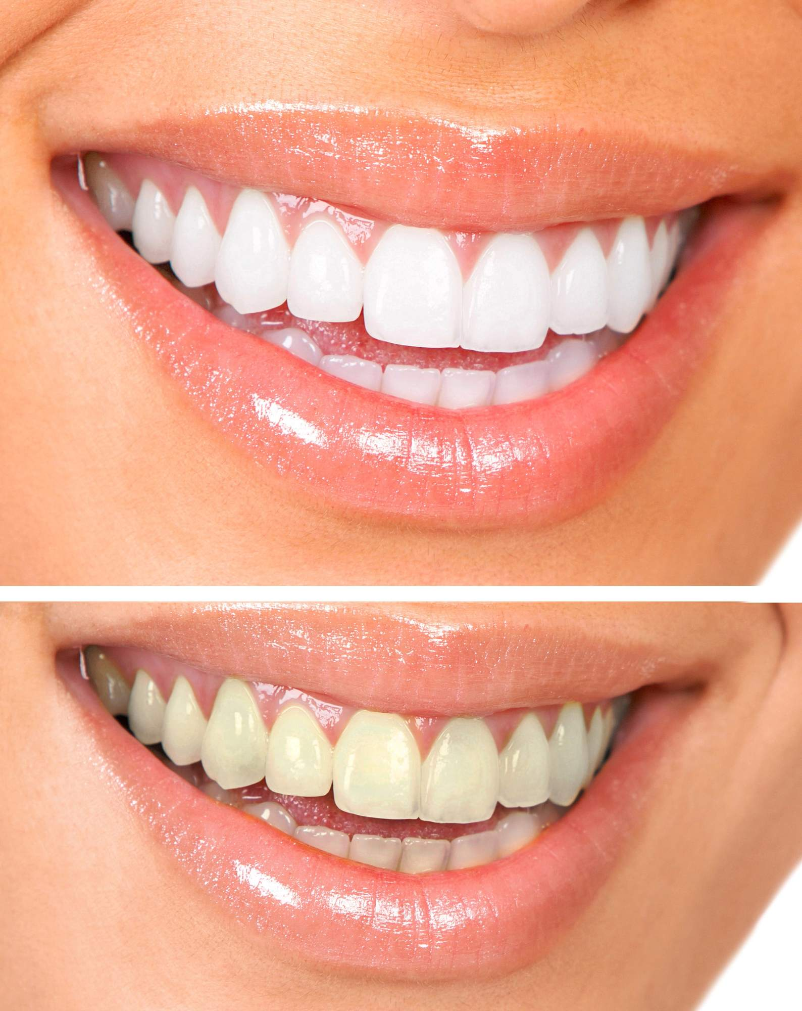 Understanding the Benefits and Process of Teeth Whitening