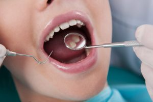 How to Prevent Needing a Root Canal in Alpharetta