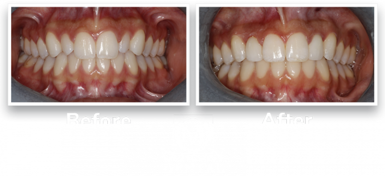 lateral dental veneers