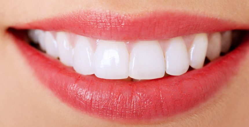 facts about Invisalign